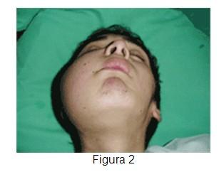 Rabdomiosarcoma