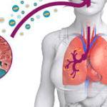 Legionellosi: sintomi, diagnosi e terapia