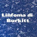 Linfoma di Burkitt