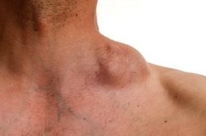 i Linfomi non-Hodgkin sono tumori dei linfociti
