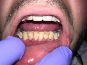 "Pt presented with chief compliant ""yellow teeth and ugly looking"". Pt wanted to extract his lower teeth and get denture since it looks much prettier."