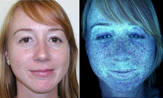 Skin Scanner  Serente Spa