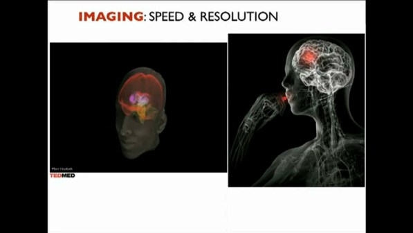 Imaging Speed & Resolution