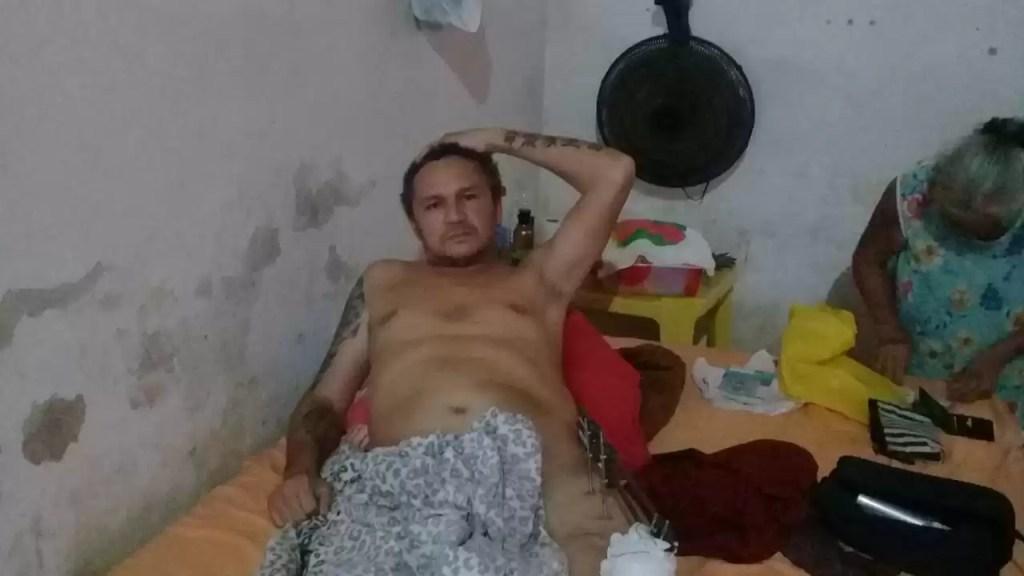 Popular que perdeu a perna durante acidente pede ajuda para realizar cirurgia
