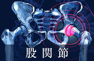 人工股関節と人工膝関節の感染症