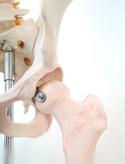 人工股関節置換術と筋力訓練