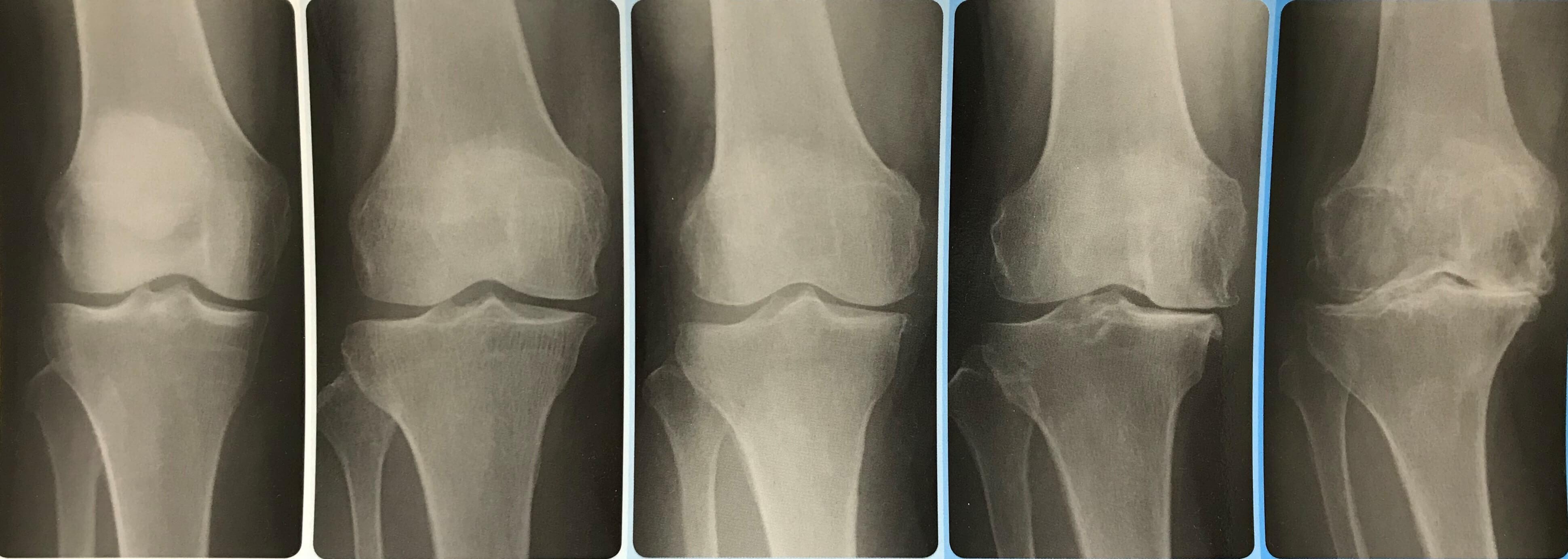変形性膝関節症の病期分類