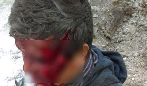 Hermanos pelean a machetazos y balazos en Tizayuca, Hidalgo