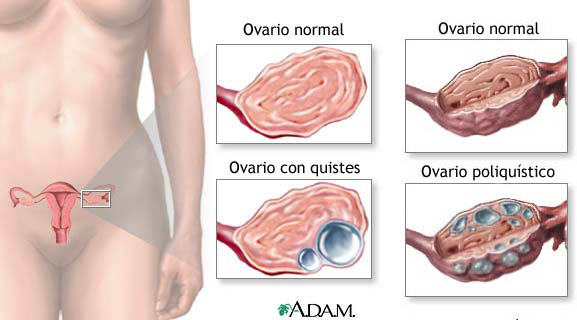 que produce quistes en los ovarios