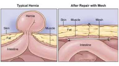 Incisional Hernia Surgery St George Surgical Center