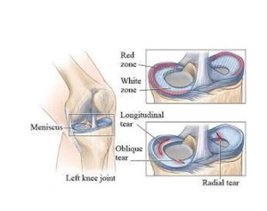 Arthroscopic-Meniscus