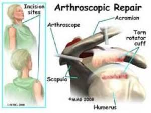 arthroscopic