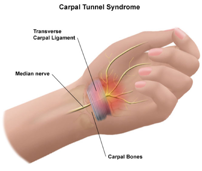 Open Carpal Tunnel Release St George Surgical Center