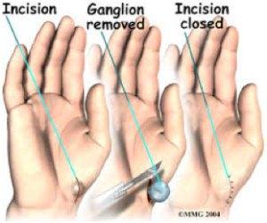ganglion-surgery
