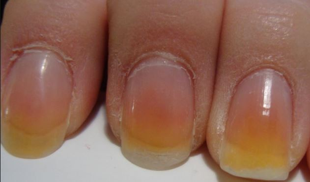 Remes To Get Rid Of Yellow And Black Nails