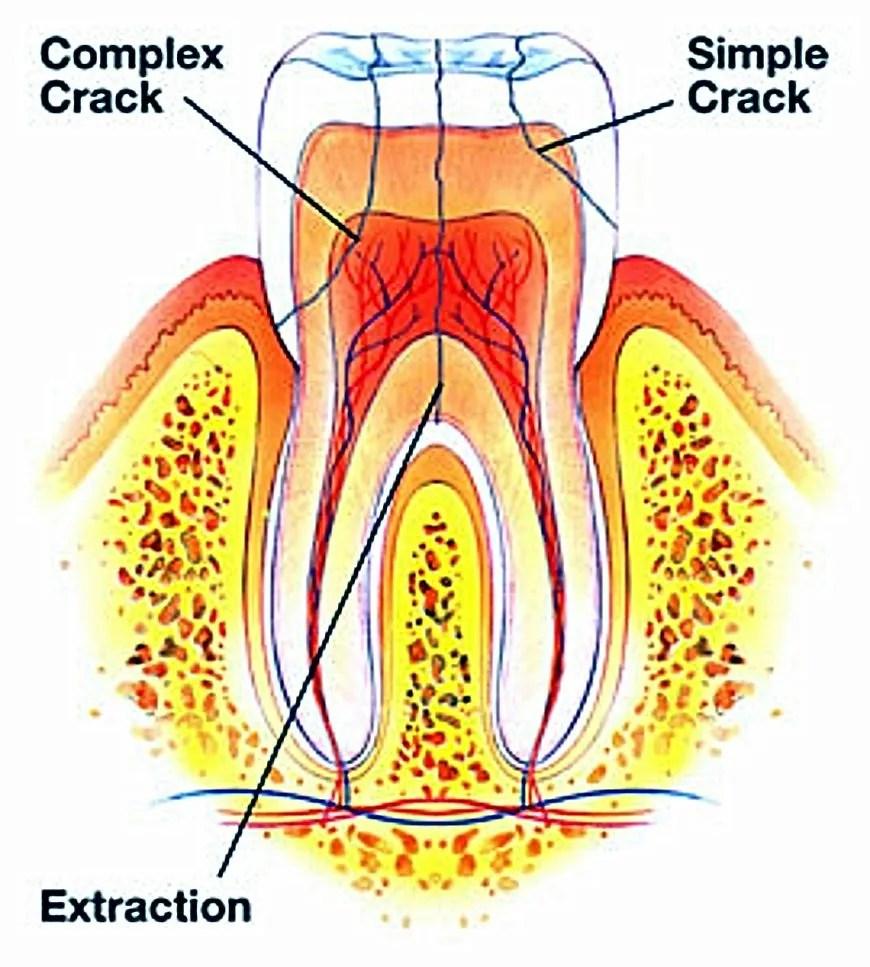 Dental Emergency Room What to Do Minneapolis Broken