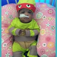 Twenty five weeks, Amir's story