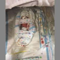Smallest preemies/Biggest fighters, Amari's Story