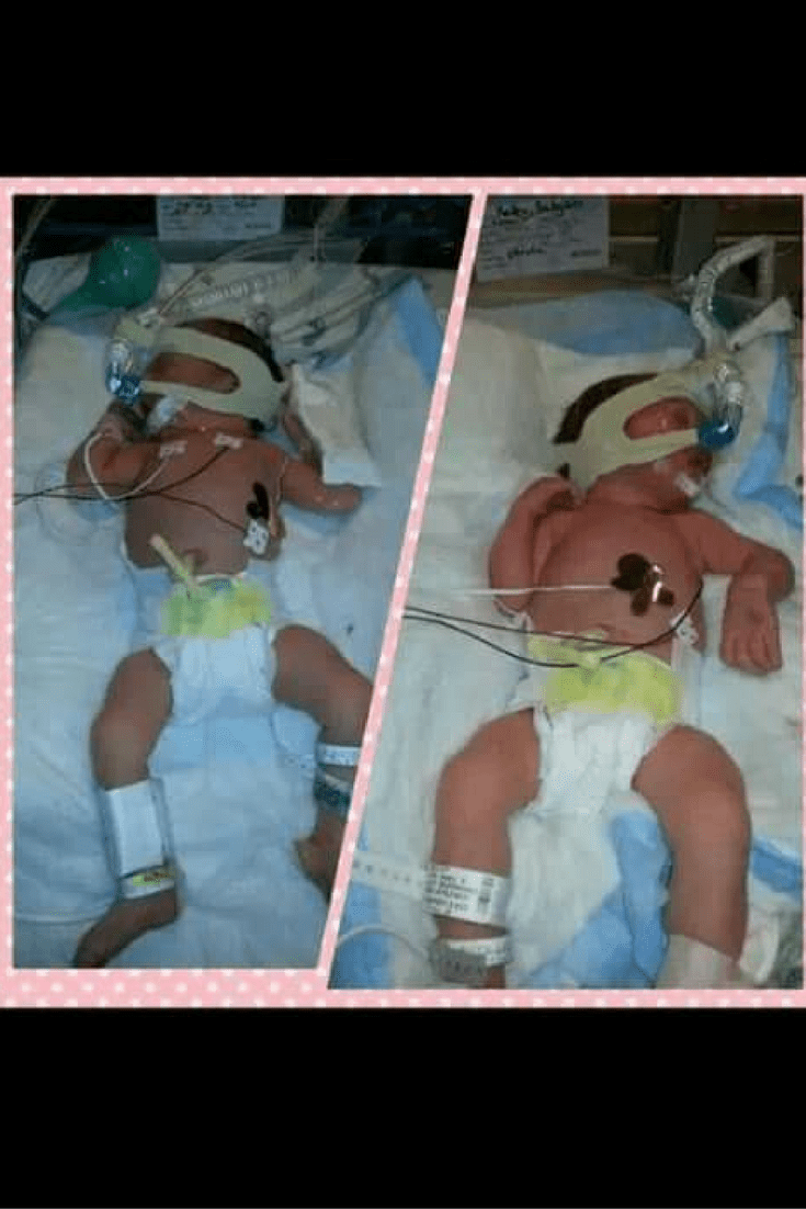 Lilianna and Annabella's story of TTTS Awareness