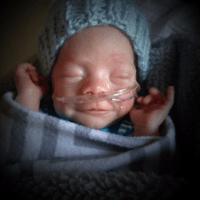 Precious Preemie Moments, Brix Michael-Dean's story