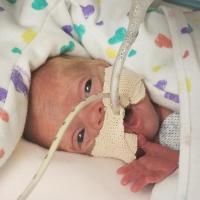 Micro Preemie Milestones: Hailey's Story