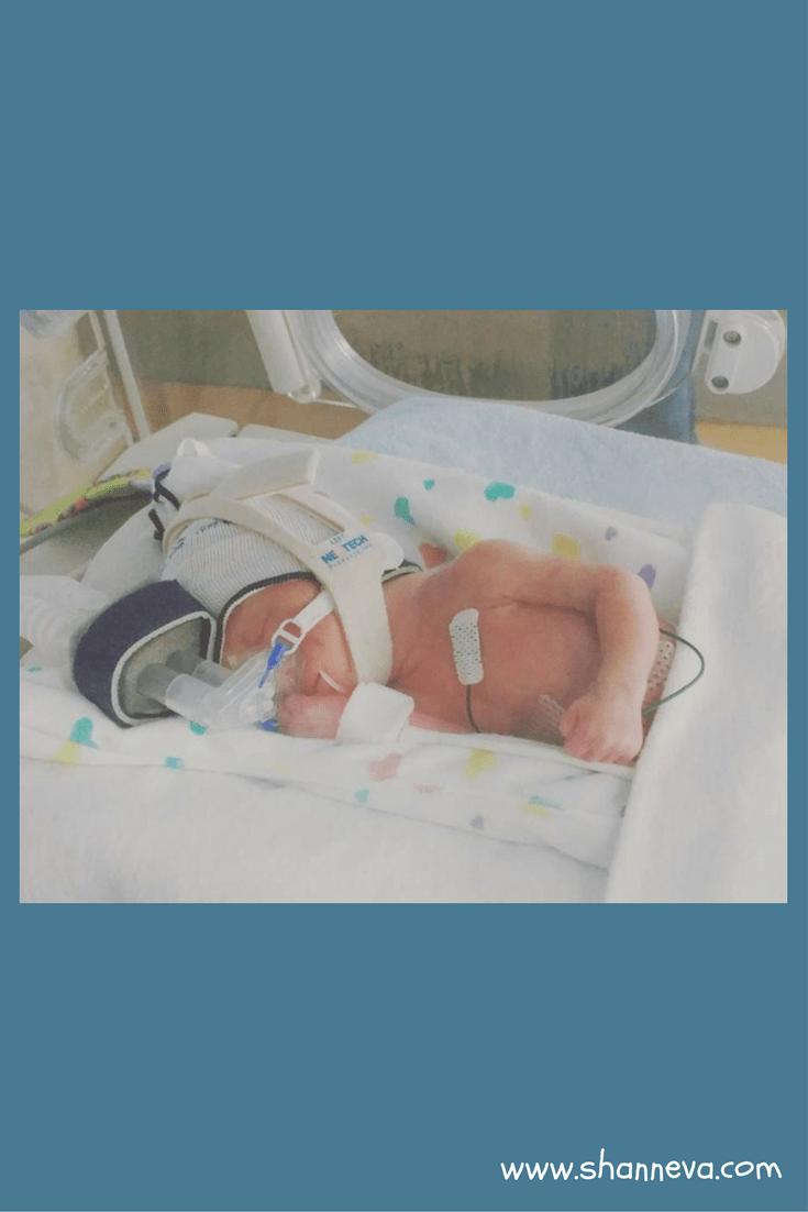 Micro Preemie Stories: Rad's Journey - Shann Eva's Blog