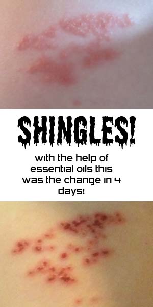 Shingles- help from essential oils