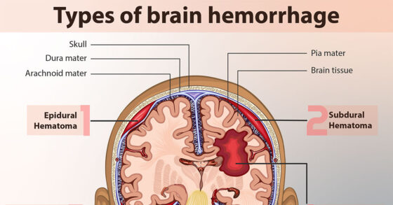 A Little Exercise Helps to Reduce Risk of Subarachnoid Hemorrhage