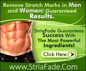 striafade stretch mark cream reviews