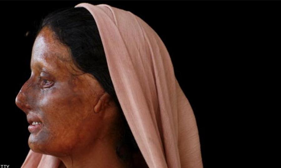 لماذا هي ثالث أخطر دولة في العالم على النساء ؟