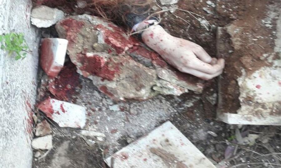 شجار عائلي في الشمال  يبيح لزوج ضرب زوجته بحجر وتركها تنزف