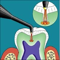 laser tooth cavity detection with DIAGNOdent