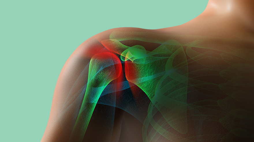 Can Cortisone Injections Help With Shoulder Pain? – San Diego ...