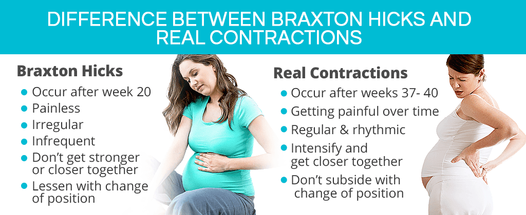 Braxton Hicks Contractions | SheCares