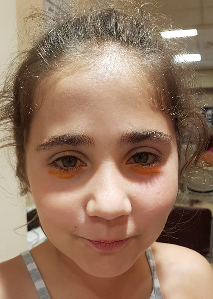 wonderful NHS - yellow eye dye under her eyes