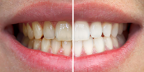 Chelsea Teeth Whitening   Cleaning   Sparkly Smile   Dr ...