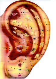 Auriculoterapia Curso