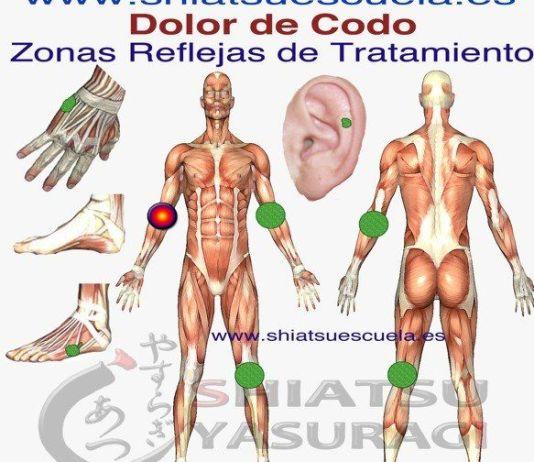 Epicondilitis Codo de Tenista Zonas Reflejas para aliviar el dolor