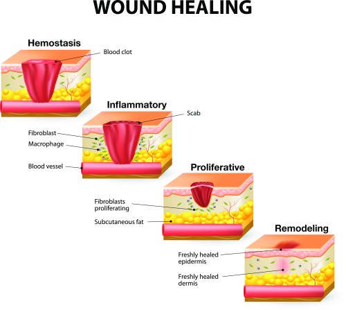 small resolution of stages of healing image