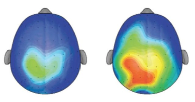 The brain, before and after Kundalini yoga
