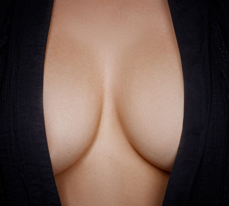 Will I have cleavage? How far apart will my breasts be after surgery?