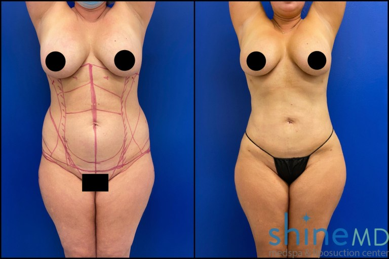Liposuction 360 with BBL before and after
