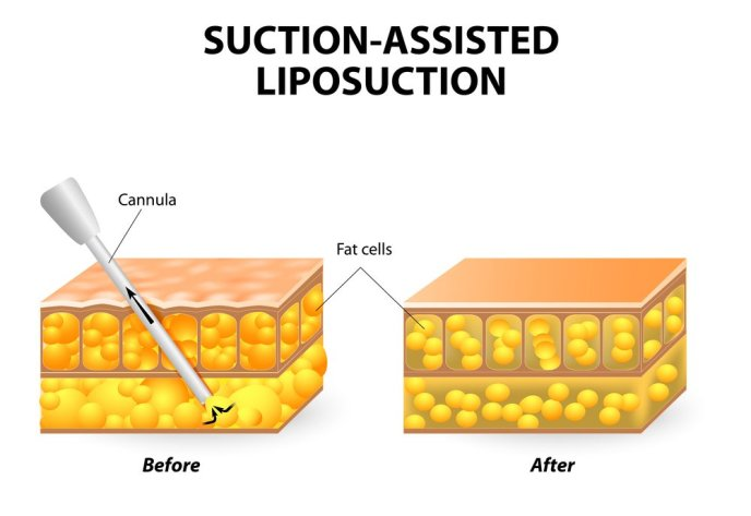 Traditional-Suction-Assisted-Liposuction-in-korea-1