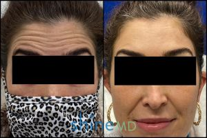 Botox for forehead before and after treatment patient shine md 002051