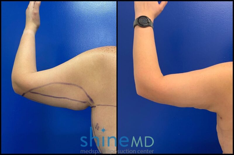 Left Back Arm Liposuction results patient shinemd 002040