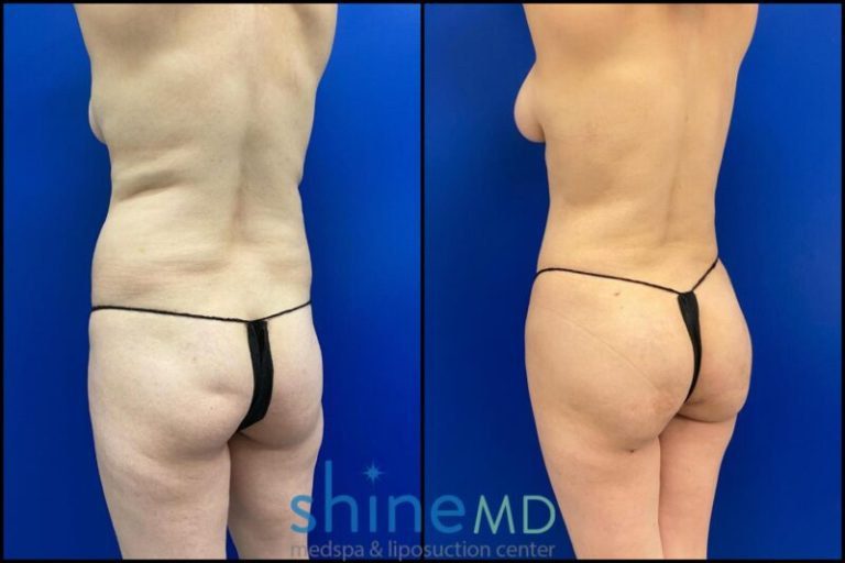 Left Back Oblique liposuction and bbl before and after results patient shinemd 002048