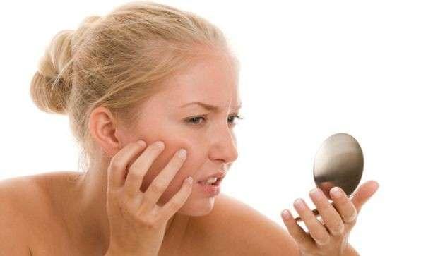 acne rosacea rimedi naturali