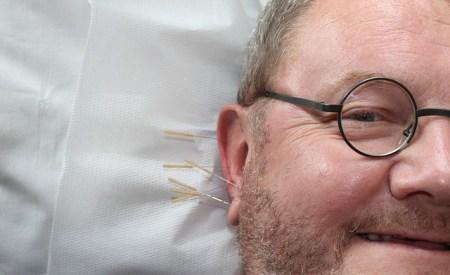 さいたま市南浦和にある『ワンダー鍼灸整骨院・漢方薬店』が美容鍼・鍼灸治療が最近人気の理由を徹底解明!