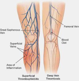differentiaal diagnose shin splint
