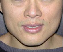 肉毒桿菌瘦臉/瘦小腿/除皺|尚安診所|皮膚科|醫學美容|微整型
